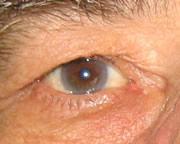 Arcus Juvenilis arcus senilis  2010-09-29